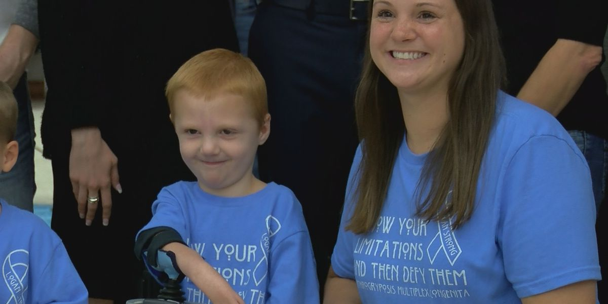 WF fundraiser helps boy to get life changing surgery