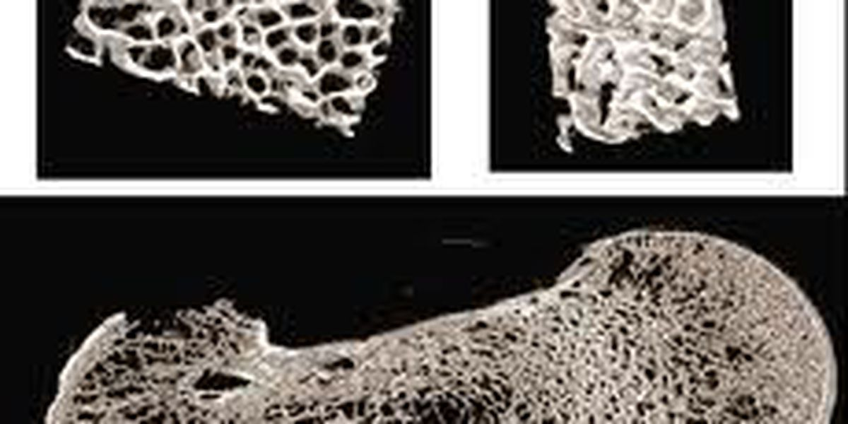 May Is National Osteoporosis Month