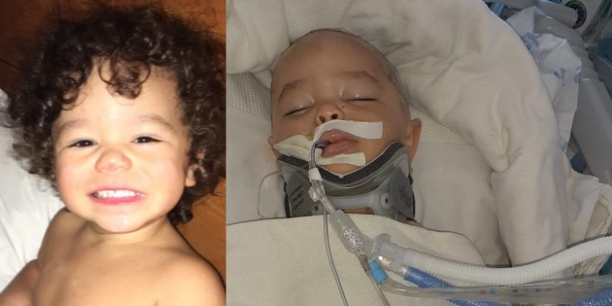 GoFundMe set up for WF child attacked by dog